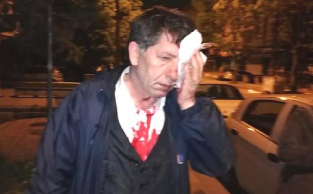 Gazeteciye alçak saldırı!