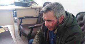 Gazeteci  Suat İncedere'ye saldırı